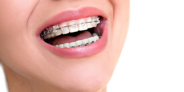 Orthodontic treatment for adults Charlotte NC